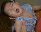 Tiếng khóc xé lòng của bé gái 9 tháng tuổi mắc tim bẩm sinh phức tạp