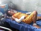 Phẫn nộ người chồng đánh đập tàn bạo vợ đang mang thai 7 tháng