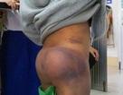 Vụ 4 học sinh bị người thân bạo hành: Không khởi tố vụ án
