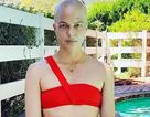 Selma Blair trọc đầu vì điều trị bệnh đa xơ cứng