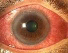 Căn bệnh gây mù loà nhiều người Việt mắc phải nhưng dễ bỏ qua triệu chứng