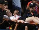 Vụ bắn pháo sáng: Bộ Văn hóa yêu cầu xử lý Ban tổ chức sân Hàng Đẫy