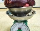 Bác sĩ rùng mình cắt khối u khổng lồ nặng gấp 11 lần trọng lượng của lá lách