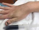 Hiếm gặp: Bệnh nhân máu chuyển màu xanh sau khi sử dụng thuốc gây tê thông thường