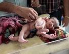 Bé gái sơ sinh có… 4 chân 4 tay ở Ấn Độ