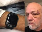 Apple Watch cứu mạng một người đàn ông Mỹ nhờ tính năng chẳng mấy ai để ý