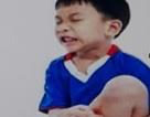 """Những điều cần biết về chứng đau cơ """"phát triển"""" ở trẻ"""