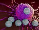 Phát hiện mới khiến tế bào ung thư 'tự sát'