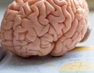 Những người có nhiều mỡ thừa ở bụng có bộ não nhỏ?