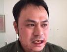 Vụ nhân viên an ninh sân bay bị đánh gãy răng: Xác định đối tượng hành hung bỏ trốn