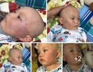 Bé trai 19 tháng tuổi bị bảo mẫu tát vẫn phải điều trị tại bệnh viện