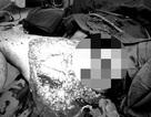 Cô gái bị kéo lê trên đường sau tai nạn được cứu sống nhờ truyền 7 lít máu