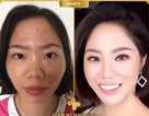Điểm mặt những gương mặt gây bão mạng sau khi phẫu thuật