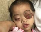 """Bé gái có cặp mắt như """"quả bóng"""" muốn nổ tung cầu cứu...!"""