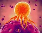 Điều gì sẽ xảy ra nếu con người tìm được phương pháp chữa khỏi Ung thư?