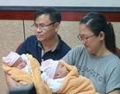 Cặp song sinh dính liền khoẻ khoắn ngày xuất viện