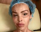 MC truyền hình Katie Piper hé lộ ảnh bị tạt axít