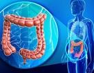 5 dấu hiệu thầm lặng của ung thư đại tràng