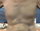Phương pháp mới - bệnh nhân phẫu thuật cắt ung thư thực quản không cần mở bụng