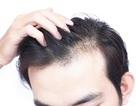 Hói đầu sớm ở nam giới và cách điều trị hói đầu hiệu quả