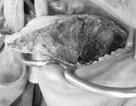 Nhiều người bỗng nhiên phải cắt lưỡi vì ung thư