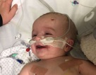 Em bé mở mắt sau 5 ngày hôn mê nhoẻn miệng cười với bố khiến tim nhiều người tan chảy