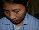 Người chồng đáng trách bỏ vợ cô đơn trên hành trình chống chọi bệnh ung thư