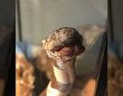 """Bệnh hiếm biến rắn trông giống như… """"xác ướp"""""""