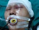 Hà Nội: Nam học sinh bị đánh chấn thương sọ não ở gần nhà
