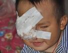 Không có tiền xạ trị, bé hơn 2 tuổi phải khoét bỏ mắt