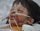 Mẹ  chở đi vay tiền chữa trị cho bố, bé 3 tuổi bị tai nạn thảm khốc.