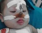 Bé Bích Lộc 8 tháng tuổi đã được mổ tim, diễn biến sức khỏe tốt