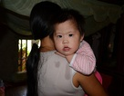 Ánh mắt đáng thương của bé 3 tuổi mắc bệnh tim bẩm sinh