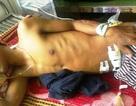 Cứu sống một bệnh nhân bị cây đâm thủng ruột non