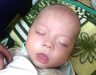 Bé trai 4 tháng tuổi thoi thóp thở vì bệnh tim bẩm sinh