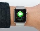 7 lý do khiến người dùng không đeo Apple Watch