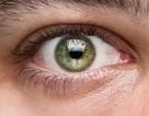 Google sáng chế kính áp tròng thông minh tiêm ngay vào nhãn cầu