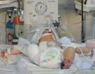 Mong manh sự sống thai nhi văng ra đường sau vụ tai nạn