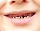 90% dân số Việt gặp các vấn đề về răng miệng