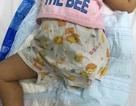 Bé 2 tuổi bị nghiến nát đùi vì vướng dây curoa của máy xát gạo