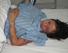 Nữ sinh tử vong do viêm não mô cầu, theo dõi 50 người liên quan