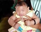 Siêu âm tuần thai nào để phát hiện dị tật đầu nhỏ do vi rút Zika?