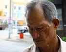 """TPHCM: Trộm bị bắt quả tang lại được thả để… """"chém"""" người tố giác (!?)"""
