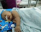 Bé trai gần 2 tuổi đứng trước ngưỡng cửa sinh tử vì bệnh hiểm nghèo