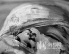 Người tố giác quan chức Trung Quốc bị tấn công bằng axit