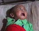 Xót lòng bé trai 3 tuổi phải luồn dây vào bụng tìm sự sống