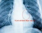 Đi khám răng, kim nhọn lọt vào phổi bệnh nhi 5 tuổi