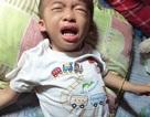 Bé 3 tuổi nguy kịch vì mắc bệnh u nguyên bào thần kinh