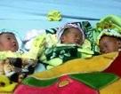 Quảng Bình: Mổ thành công cho sản phụ sinh ba