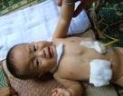 Thương bé 11 tháng tuổi bị teo thực quản và không có hậu môn